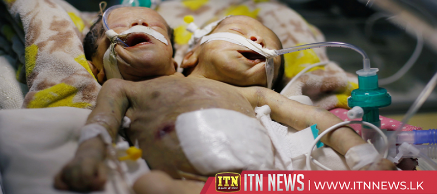 Conjoined twins born in Yemen need treatment abroad to survive