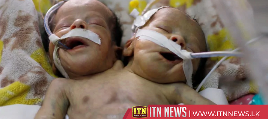 Yemeni conjoined twins die without treatment abroad
