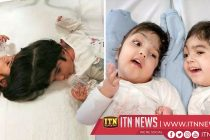 UK doctors reveal separation of twins joined at the head