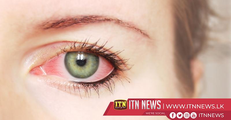 Smartphone app tests for dry eye disease in children